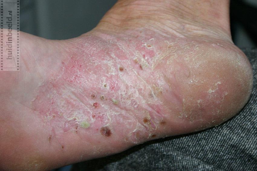 Псориаз, нейродермит, экзема, аллергические заболевания