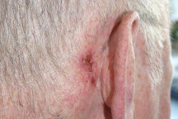 eczeem achter oor