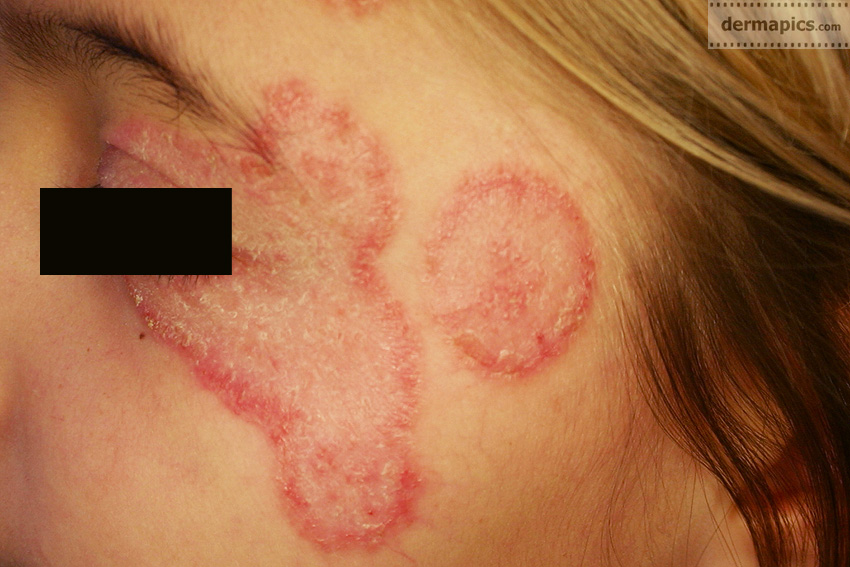 Diagnosis and Management of Common Tinea Infections ...