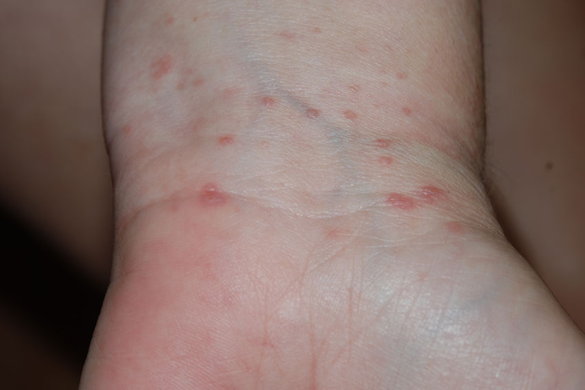 red itchy rash on legs