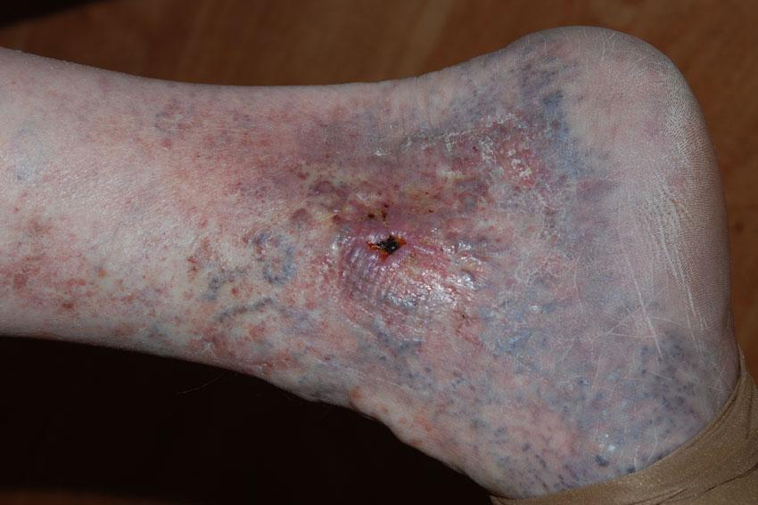 vernauwing bloedvaten benen