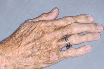 elasticiteit van de huid