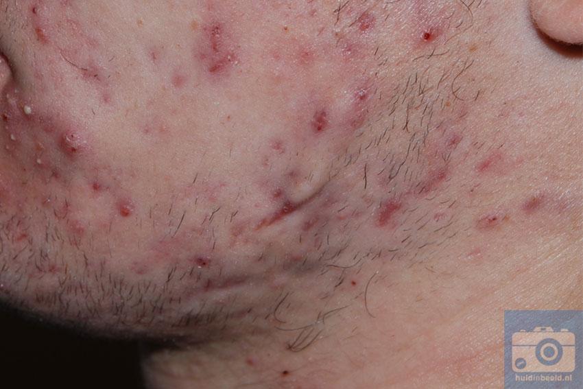 acne (jeugdpuistjes) in het gelaat
