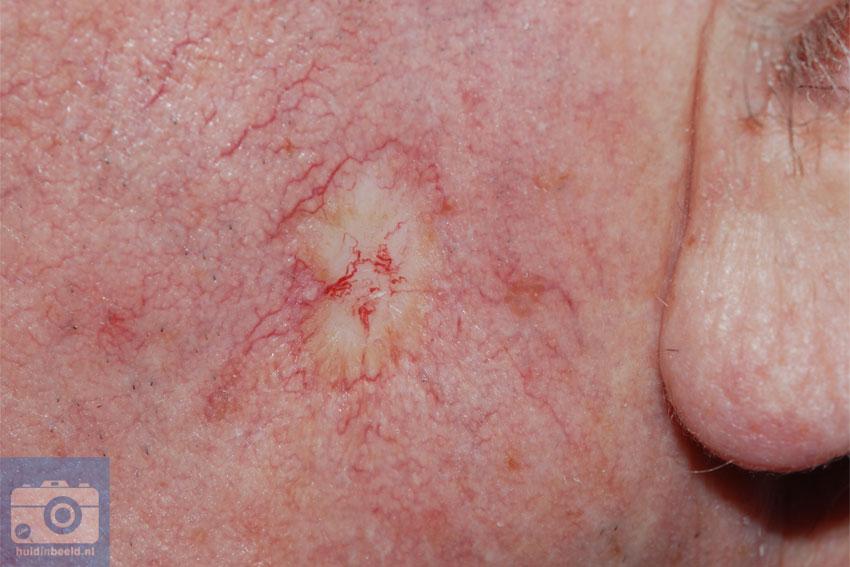 morfeaform basaalcelcarcinoom