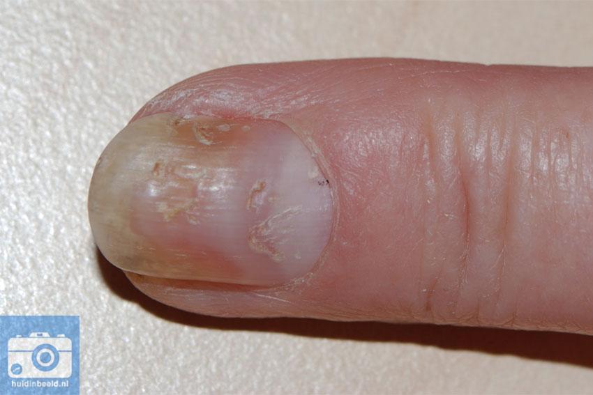 psoriasis van de nagels