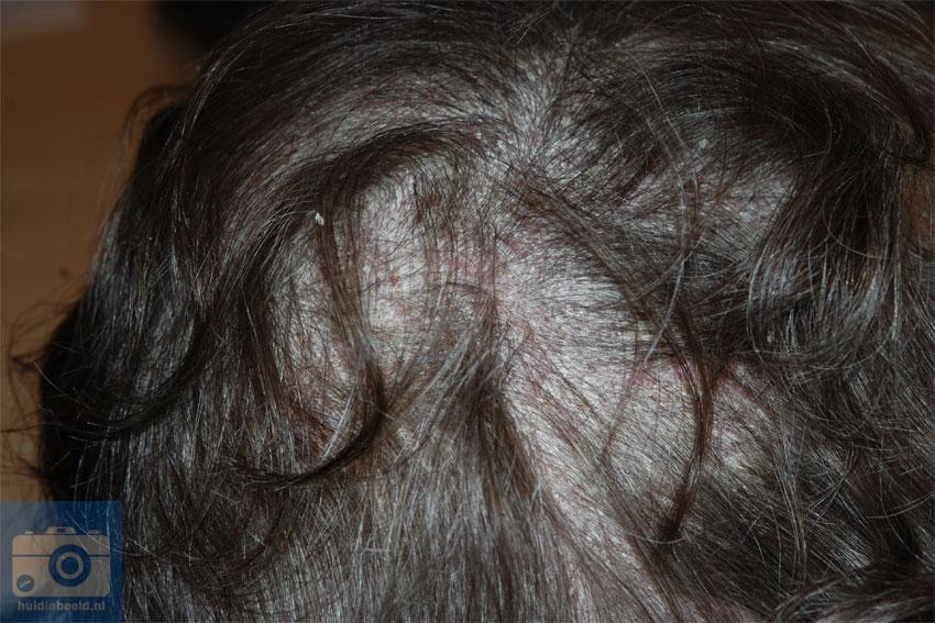 psoriasis van het behaarde hoofd