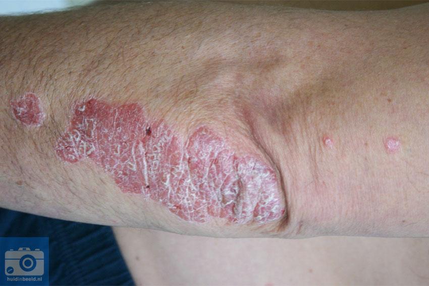 psoriasis vulgaris elleboog
